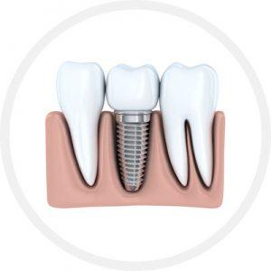 implant-disc400