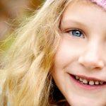 chalky teeth Hypomin Yarra Valley Dental